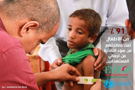 The cure rate is high  where the  number of cured children  reached 595